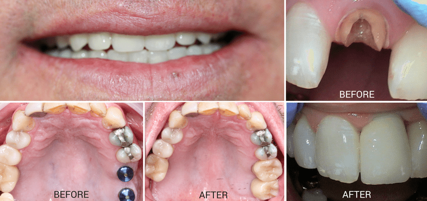 Photos of actual patients who received dental implant in Edmonds, WA at Affinity Contemporary Dentistry
