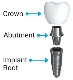 The anatomy of a dental implant