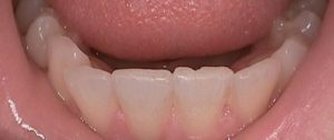 Lower teeth that show mild wear and chipping from short-term grinding and clenching