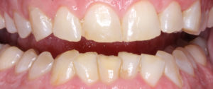 Teeth with significant wear and chipping, because of the effects of clenching and grinding
