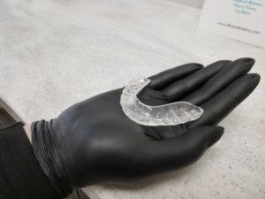 Custom Fabricated Occlusal Guard
