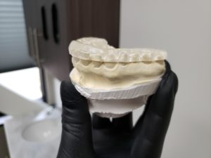 Mounted dental model with a custom created occlusal guard