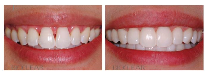 Before and After Bioclear Black Triangle